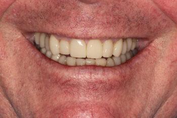 Applied full restorations and orthodontics