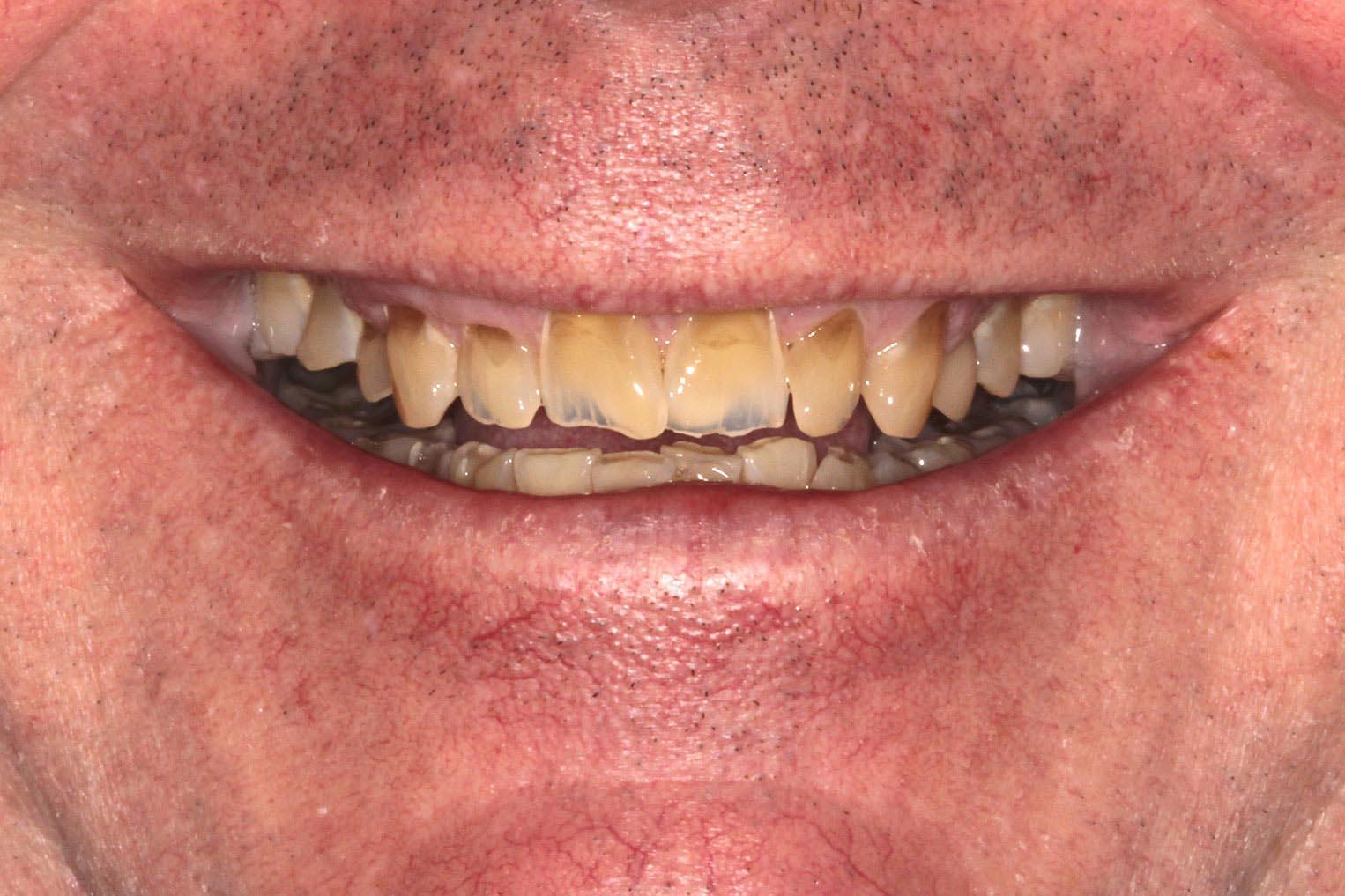 Teeth needing full restorations and orthodontics