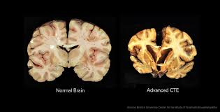 Traumatic Brain Injury Post 2 – What are TBI and CTE?