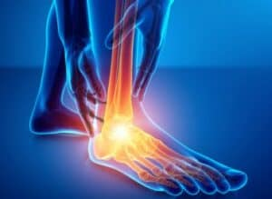 Our image of Foot & ankle pain areas