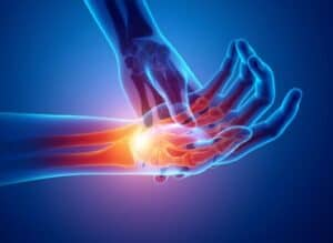 Our image of pain in the hand &