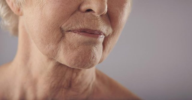 Photo of Natural Ways To Get Rid of Neck Wrinkles [2]
