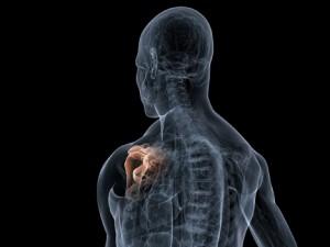 CrossFit-Shoulder-Pain