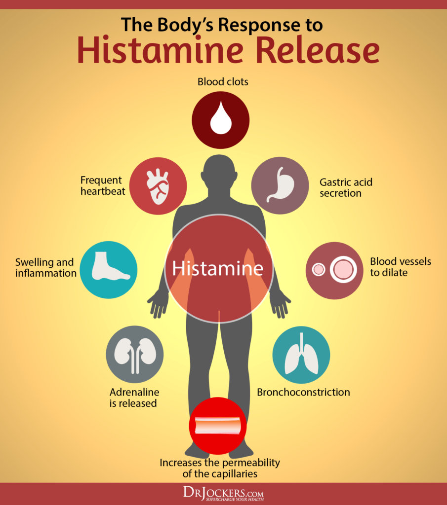 Histamine Intolerance, Are You Suffering From Histamine Intolerance?