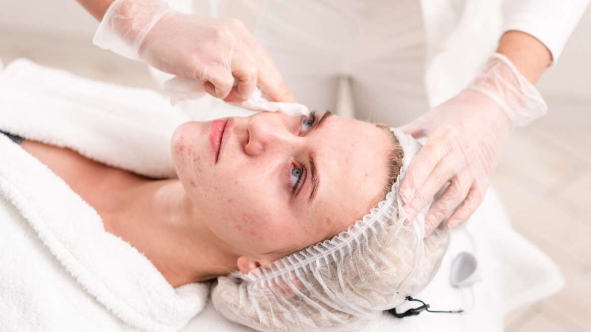 How your salon can help clients minimise the effects of acne