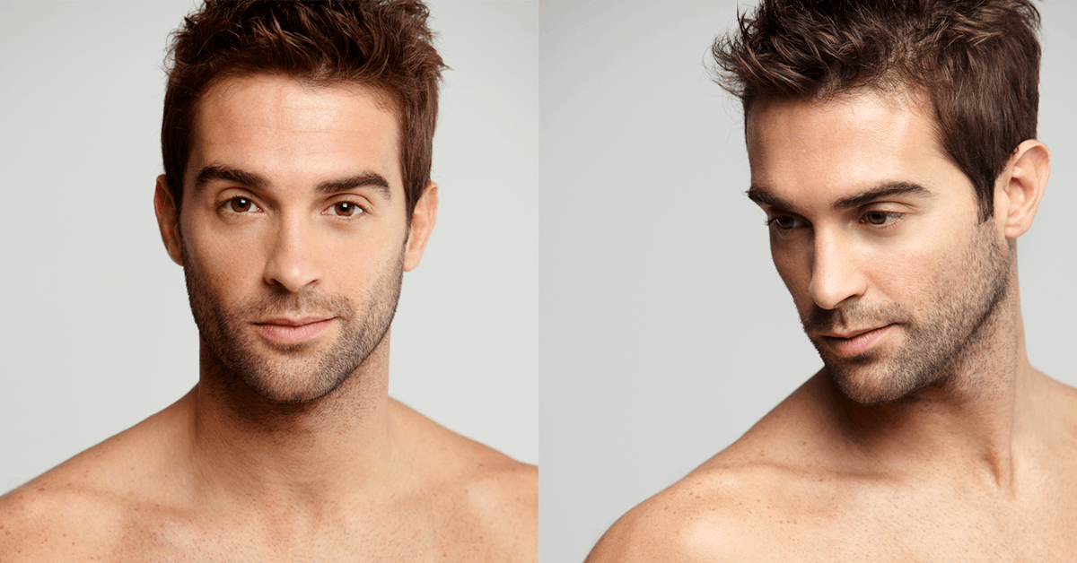 Short haircut for men with receding hairlines