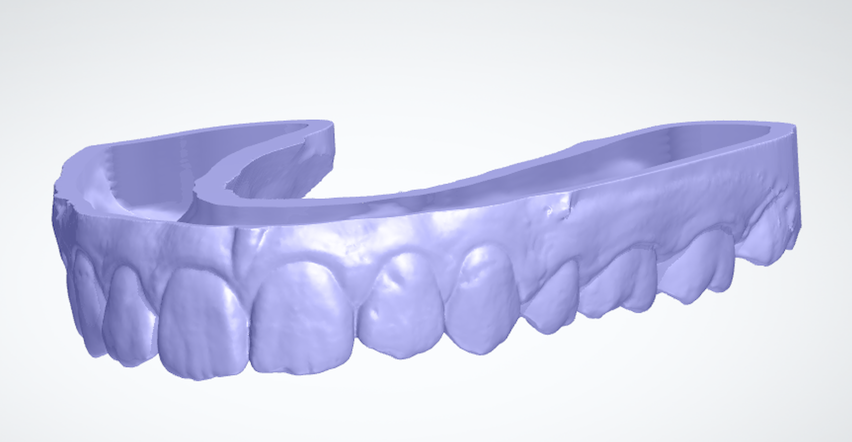 retainers from 3d scans