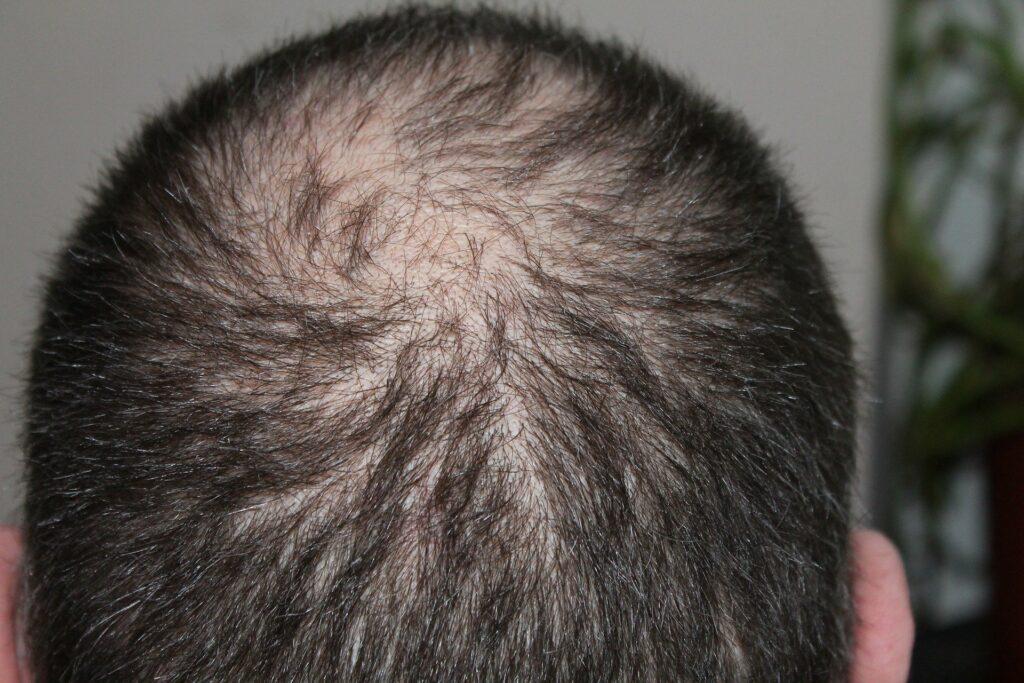 hair falling - remedies and reasons