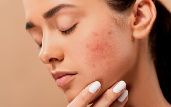 Recurring Acne On The Same Spot And How To Deal With It
