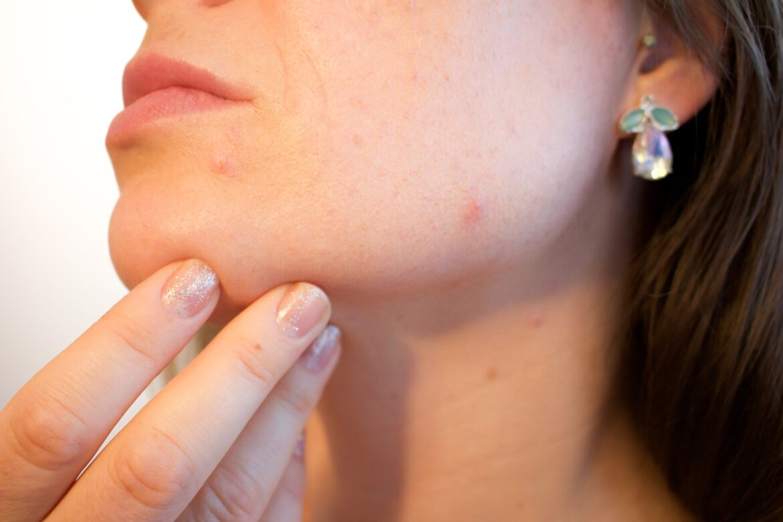 anti acne tips
