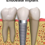 Endosteal implants