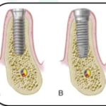 Two stage implants