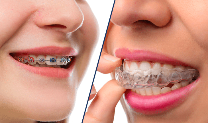 How does invisalign work? Invisalign is the clear alternatve to braces.