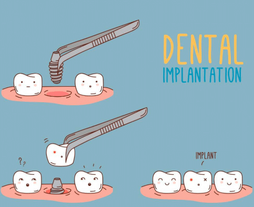 Dental implant procedure | the truth about dental implants