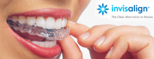 Little Pearls Orthodontics - Experienced Orthodontists for Braces & Clear aligners.