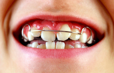 Orthodontist inBangalore - Advanced orthodontics clinic for braces and Invisalign.