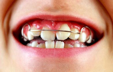 Orthodontist inBangalore - Advanced orthodontics clinic for braces and Invisalign.