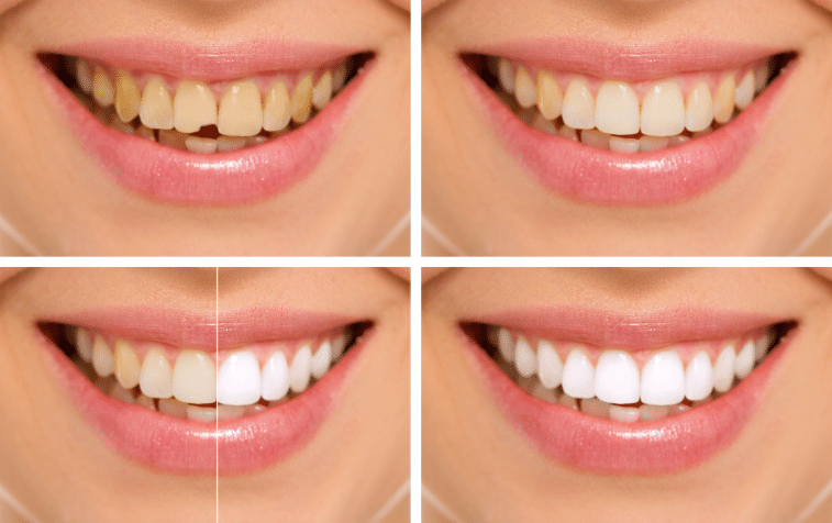 Dentist, pediatric dentist, kids dentist & Orthodontist. Dental clinic in Bangalore.