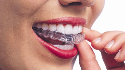 About little pearls invisalign bangalore