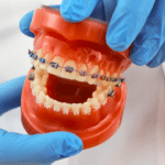 What is an orthodontist