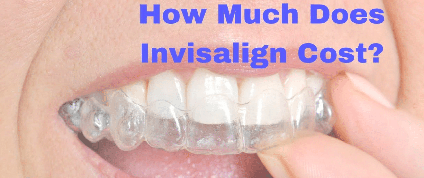 Invisalign cost in bangalore