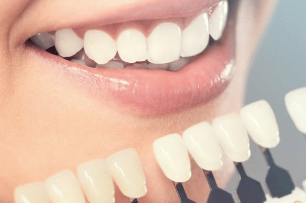 Little pearls cosmetic dental in Bangalore