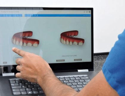 A few tips you can use to save on the overall cost of Invisalign in Bangalore
