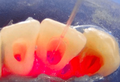 Advancements in 2020 in Root canal dental procedures
