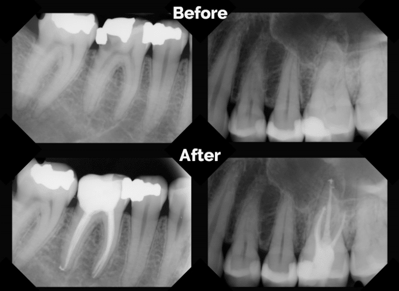 Advantages of saving your natural tooth with the root canal therapy