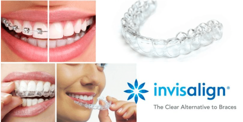 How much does Invisalign invisible braces cost In Bangalore