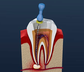 Little Pearls Endodontics in Bangalore