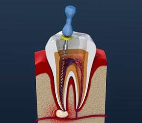 Little Pearls Endodontics in Bangalore