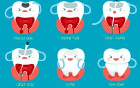 Pediatric Endodontics for kids in Bangalore at Little Pearls Pediatric dentistry