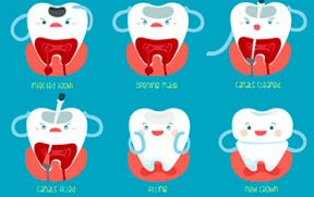 Pediatric Endodontics for kids in Bangalore at Little Pearls Pediatric dentistry