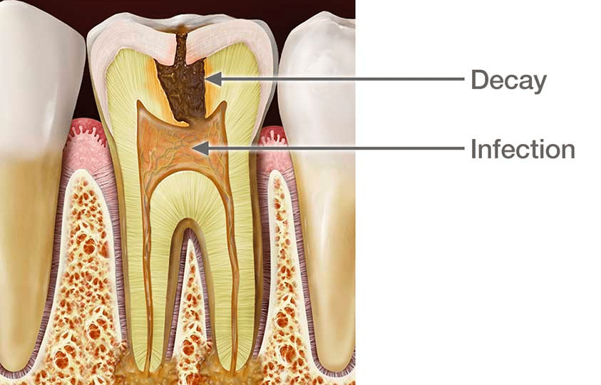 Root canal treatment in Bangalore