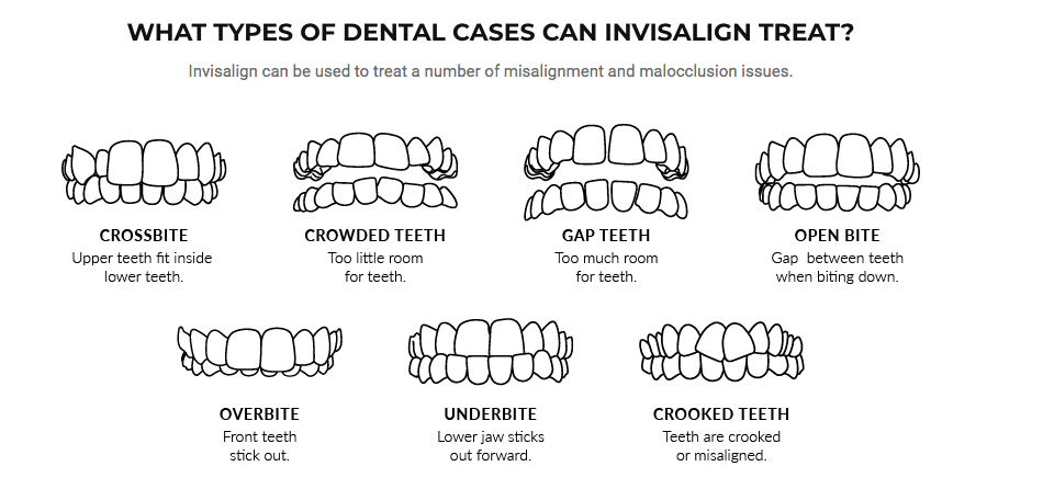 What are the types of Invisalign and how much does it cost? Clear Aligner variants and their average price in Bangalore