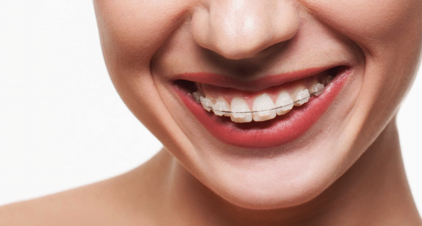 Ceramic Braces at Little Pearls Orthodontics