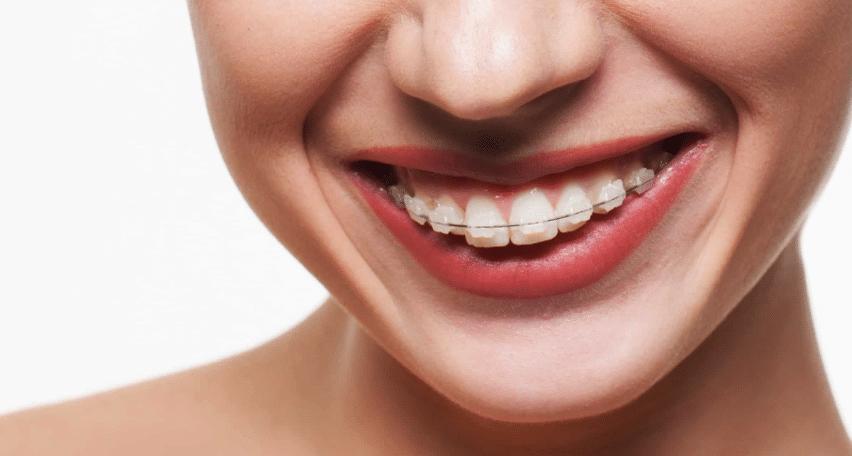 Ceramic Braces at Little Pearls Orthodontics