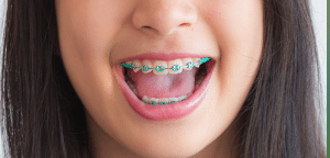 Early childhood braces for kids