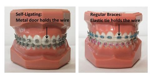 Self Ligating Braces at Little Pearls Orthodontics