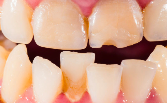 Crooked Teeth correction in Bangalore using early childhood braces braces