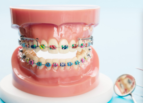 Early Childhood Braces for Kids in Bangalore at Little Pearls Orthodontics.