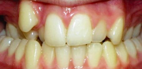 Overcrowded Teeth teeth correction using braces