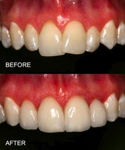 Overlapping Teeth correction using braces
