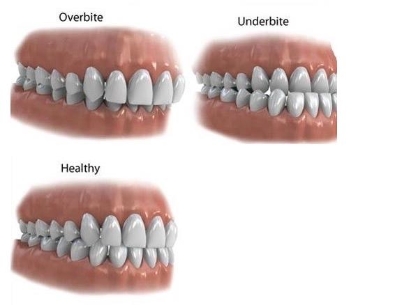 Underbites and Overbites correction using braces