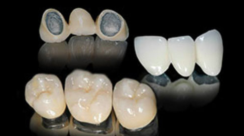 Advantages of PFM Dental Crowns