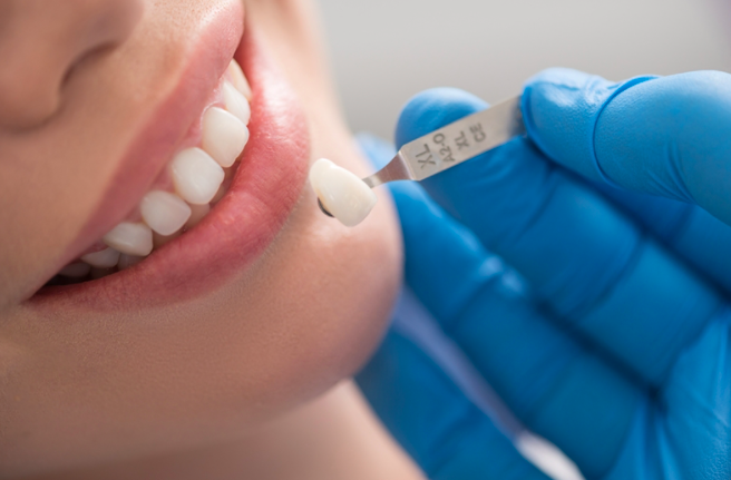 Advantages of Porcelain Dental Crowns