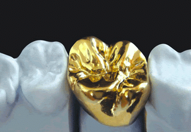 Disadvantages of Gold Dental Crowns