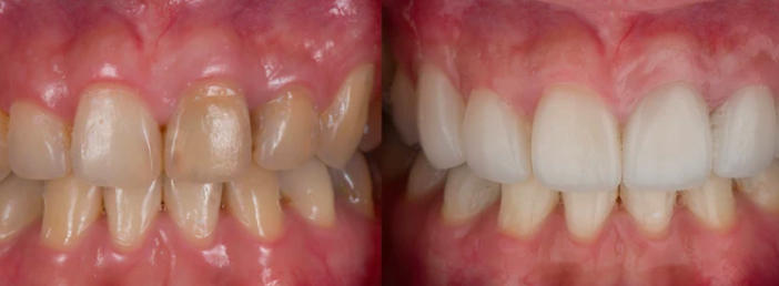 Treatment with dental crowns before and after