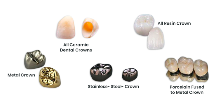 Types of Dental Crowns in Bangalore